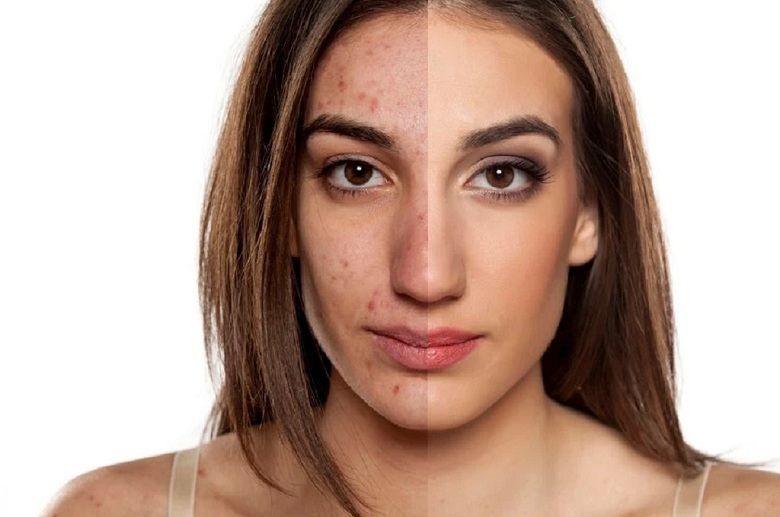 How to Make Acne Scars and Age Spots Invisible